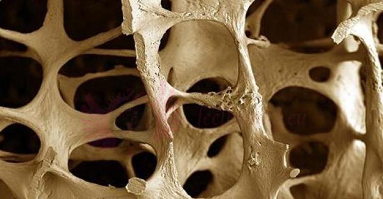 Densytometria kości