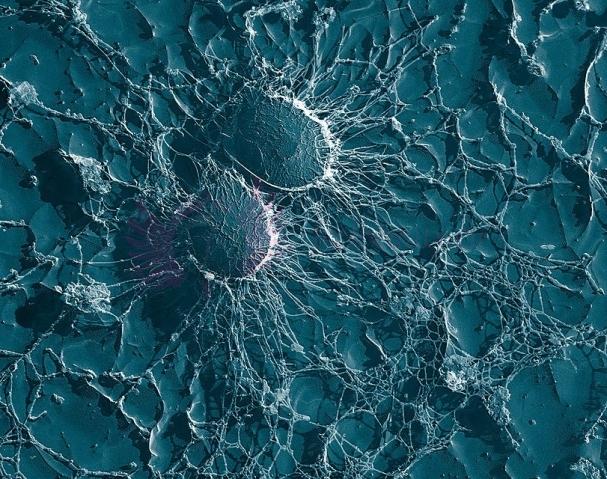 Gronkowiec złocisty (MRSA) Staphylococcus