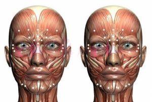 Botoks-toksyna botulinowa w medycynie estetycznej