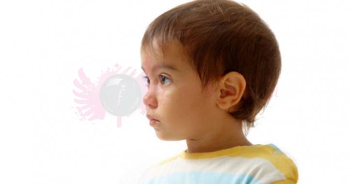 otoplastyka u dzieci